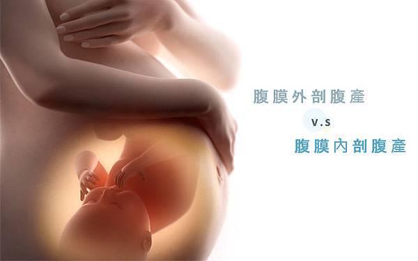 懷孕剖腹產│腹膜外剖腹v.s一般剖腹生產差別