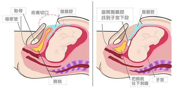 腹膜外300dpi