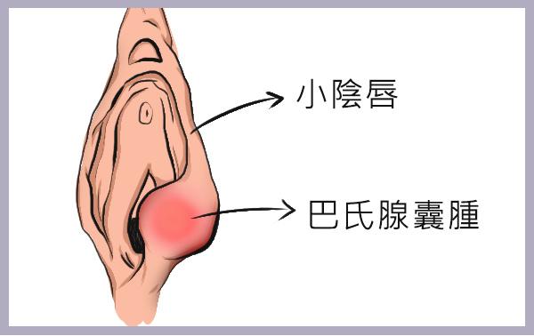 巴氏腺囊腫