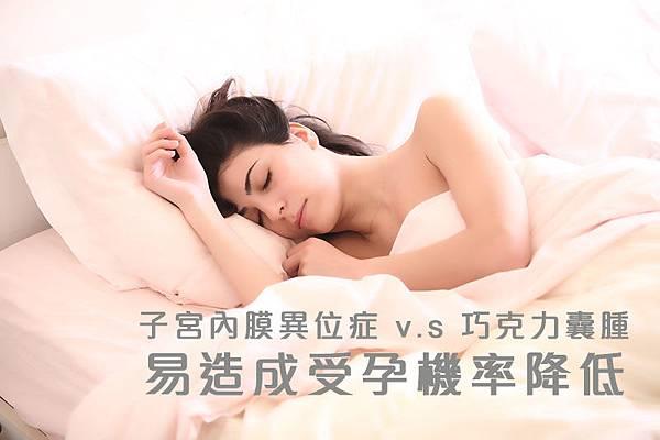 子宮內膜異位症 v