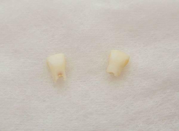 乳牙收納盒DIY (17).jpg