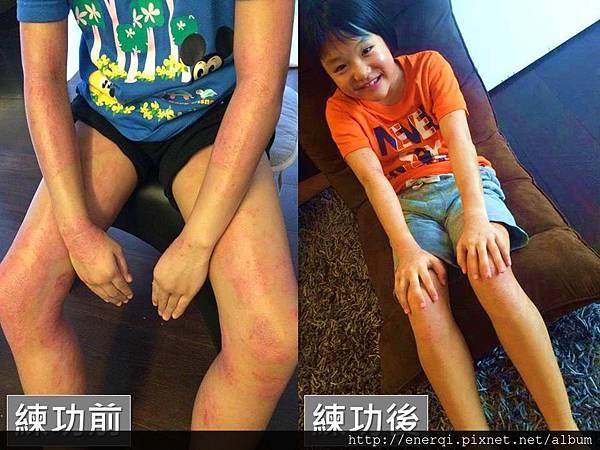 香港濕疹2.jpg