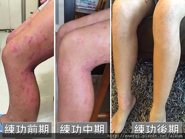 香港濕疹1.jpg