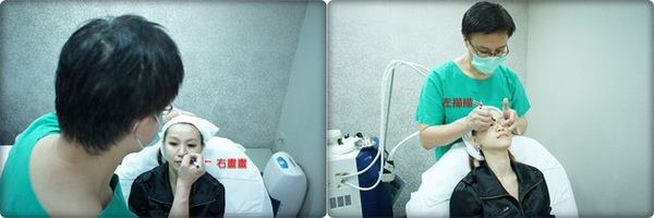 元和雅高雄台南診所-微晶瓷山根隆鼻-案例照片分析-樂芙-13.jpg