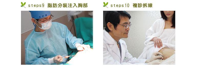 猴抓妹陳維芊自體脂肪豐胸元和雅13.jpg