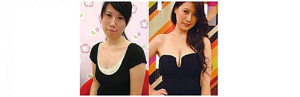 自體脂肪豐胸案例10-1