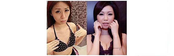 10-2自體脂肪豐胸案例
