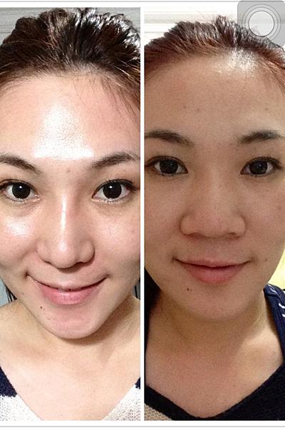 隆鼻術前術後對比圖
