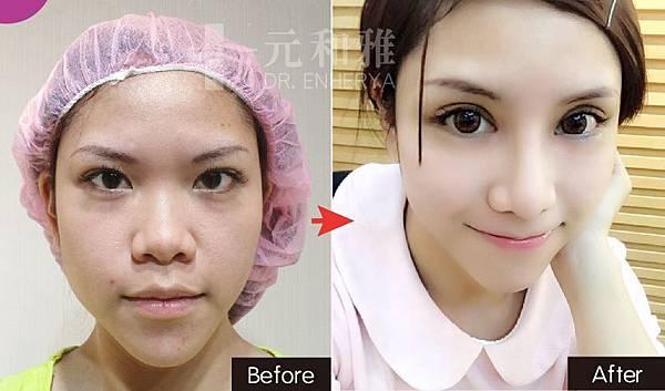 訂書針雙眼皮手術,割雙眼皮/訂書針雙眼皮打造混血電眼美瞳2017