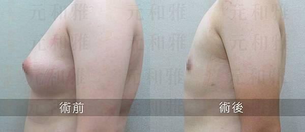 平胸手術05