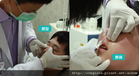 元和雅_膠原蛋白隆鼻_膠原蛋白蘋果肌_南部高雄台南_微晶瓷隆鼻案例照片