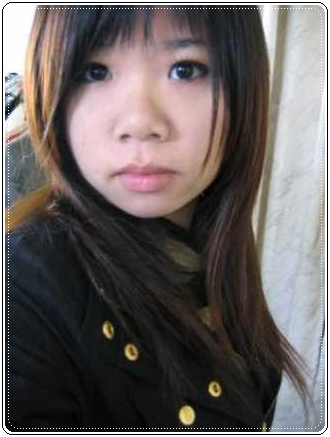 元和雅(高雄台南)診所-肉毒桿菌瘦小臉瘦國字臉-14.jpg
