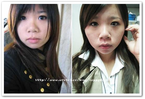 元和雅(高雄台南)診所-肉毒桿菌瘦小臉瘦國字臉-2.jpg