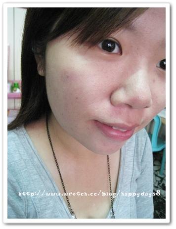 元和雅(高雄台南)診所-肉毒桿菌瘦小臉瘦國字臉-1.jpg