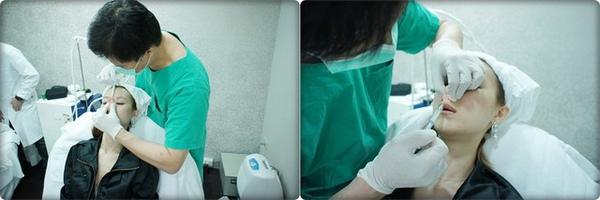 元和雅高雄台南診所-微晶瓷山根隆鼻-案例照片分析-樂芙-17.jpg