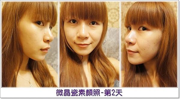 元和雅高雄台南診所-微晶瓷山根隆鼻-案例照片分析-樂芙-36.jpg