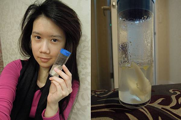 """整形整容手術滿兩周!稍稍消腫了!蒂芬妮特地回台灣診所""""撿骨"""",就是拿回她削下來的骨頭啦!"""