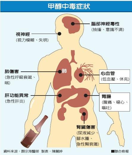 AB014-甲醇中毒.jpg
