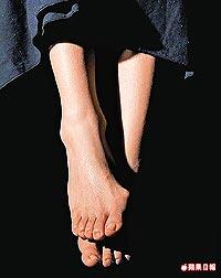 她扁平足導致腳拇趾外翻嚴重。