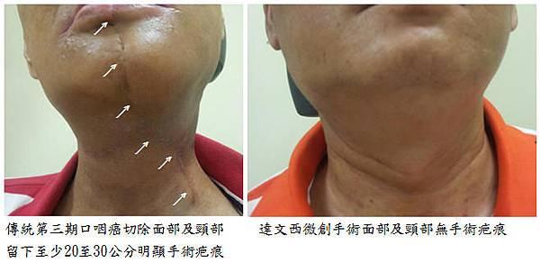 口咽癌達文西微創手術面部及頸部無手術疤痕