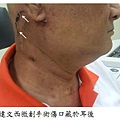 口咽癌達文西微創手術傷口藏於耳後