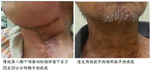 下咽癌達文西微創手術面部及頸部無手術疤痕