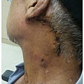 下咽癌達文西微創手術傷口藏於耳後