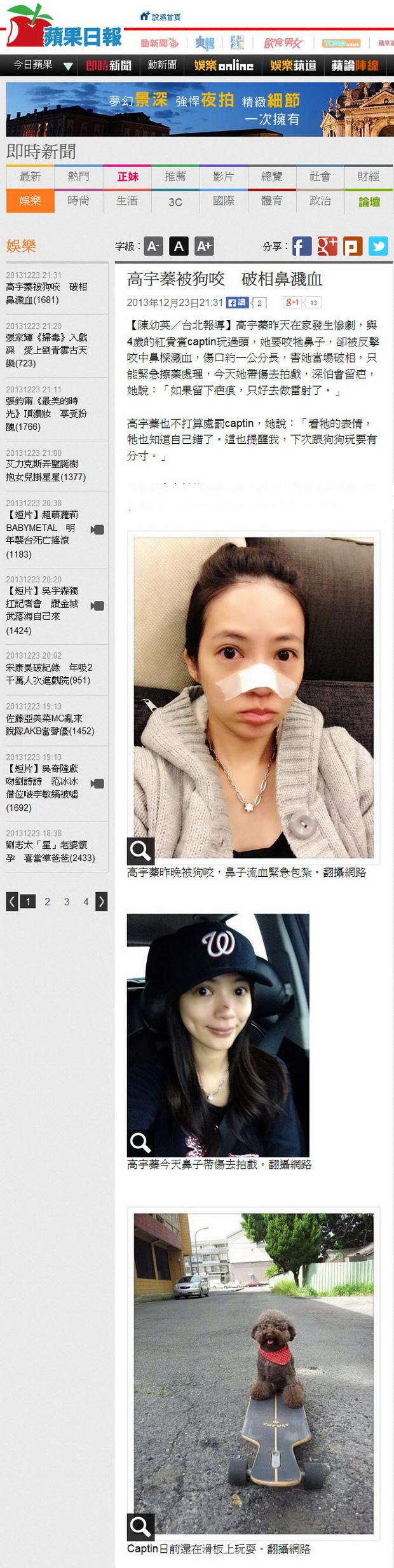 高宇蓁被狗咬 破相鼻濺血-2013.12.23.jpg