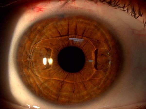 植入式隱形眼鏡