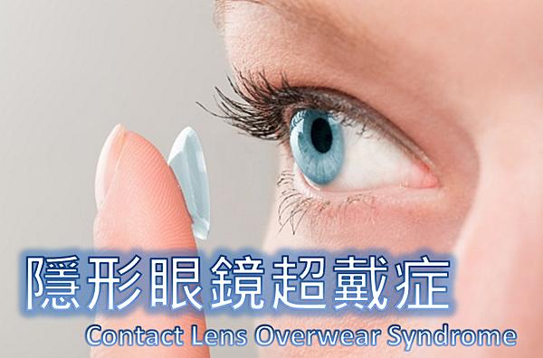 隱形眼鏡超戴症