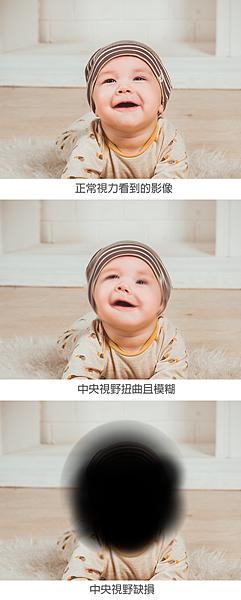 EyePlus_黃斑部病變.png