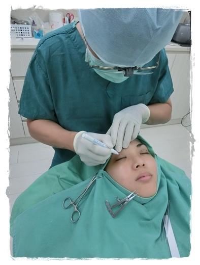 台中訂書針雙眼皮醫師推薦10