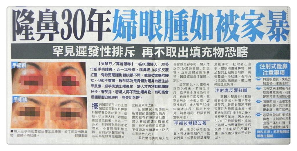 隆鼻30年 婦眼腫如被家暴