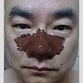 MILDSKIN 第三袋巧克力粉刺面膜組_使用中