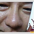 MILDSKIN 第三代巧克力粉刺面膜組