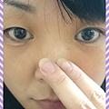 霓淨思 粉刺溶解精華PH5.5