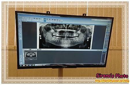 康河牙醫診所-X光
