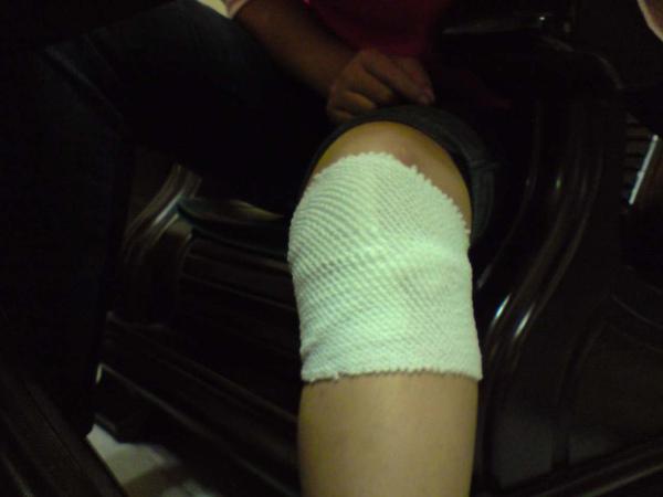 受傷第二天-左膝