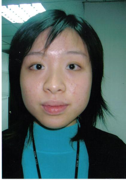 皮膚-使用後