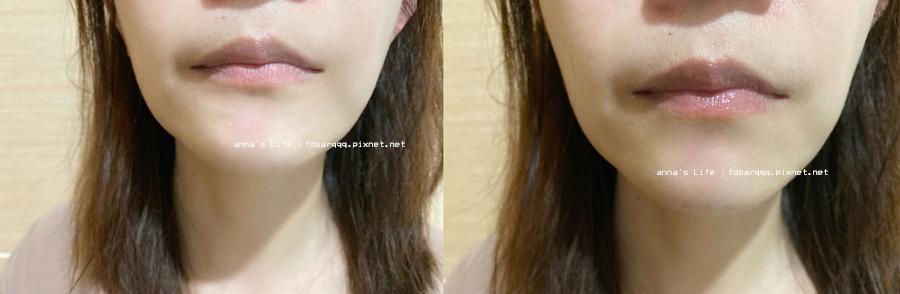 胎盤素護唇膏.jpg