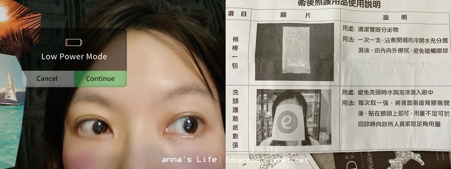 雷射近視臉部清潔清洗方式.jpg