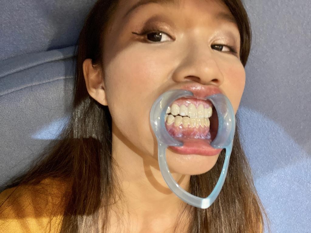想要牙齒美白就找它!Whitening Net TW 淨白美齒SPA(誠品南西店)