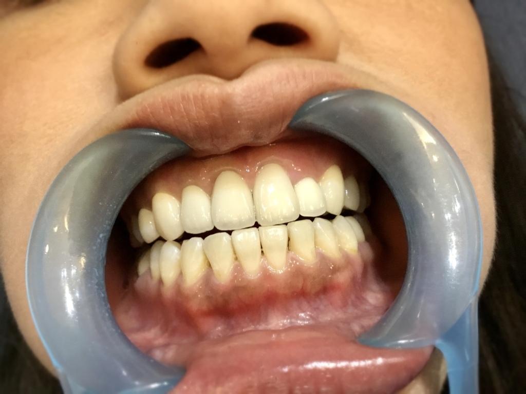 牙齒美白的專家-Whitening Net TW 淨白美齒SPA
