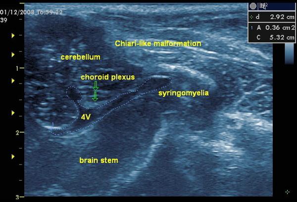 syringomyelia1