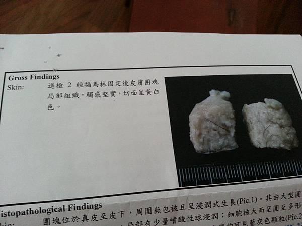 腫瘤檢查報告2