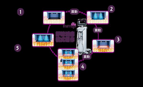 鳳凰電波舒適模式-1-1030x630 (1)