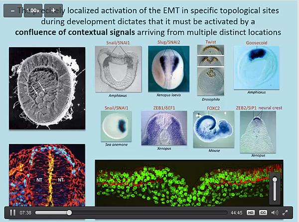 FireShot Capture 162 - Genetics of tum_ - https___hstalks.com_t_3136_genetics-of-tumor-metastasis-1_.png