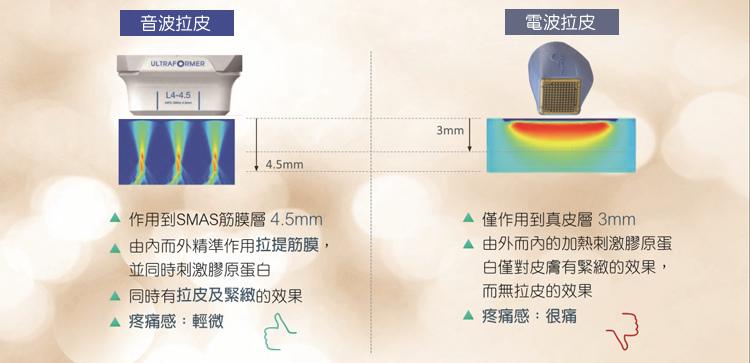 拉提儀器比較_電波音波比較.jpg