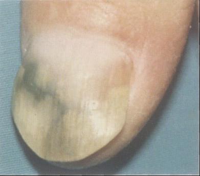 混合感染性甲真菌病
