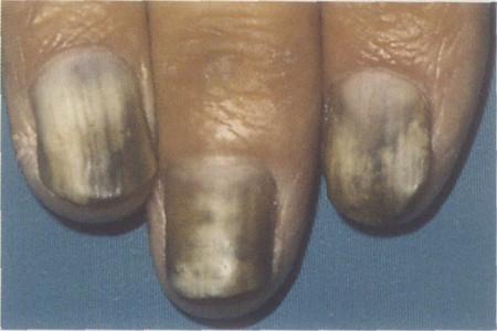 老年人灰指甲